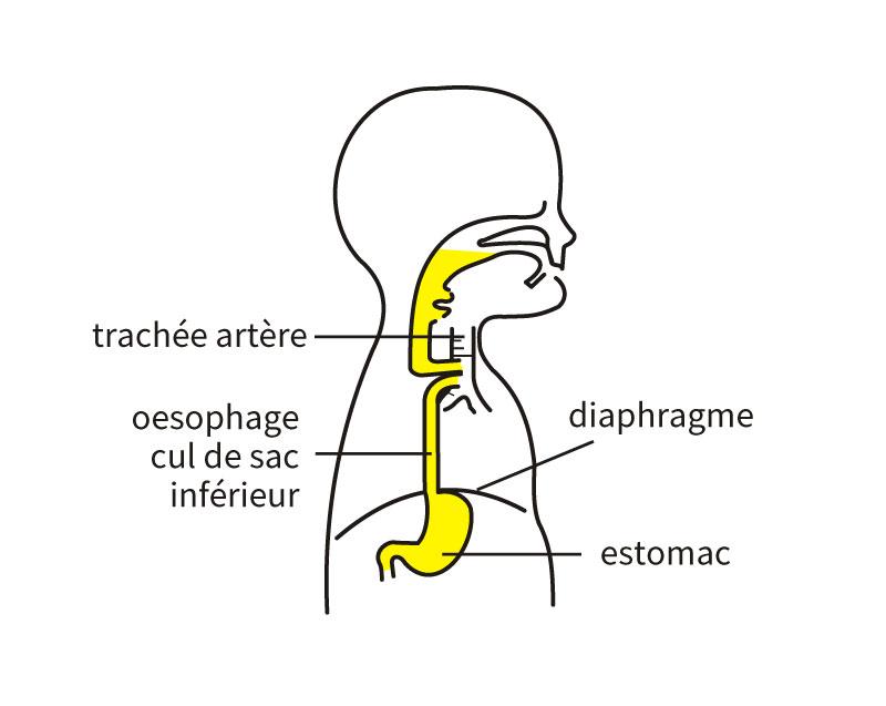 Type D (fistule distale et proximale) 3% des cas
